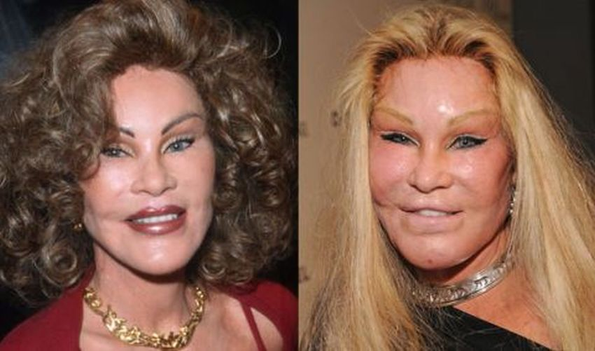 Celebrity Plastic Surgery Disasters Goldie Hawn